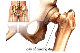 Gãy xương cổ đùi ở người già – bệnh lý không nên chủ quan