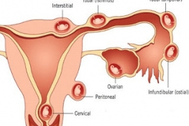 Thai ngoài tử cung vỡ, choáng- nỗi lo sức khỏe phụ nữ.