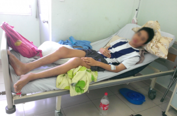 Tiếp nhận bệnh nhân viêm cột sống dính khớp